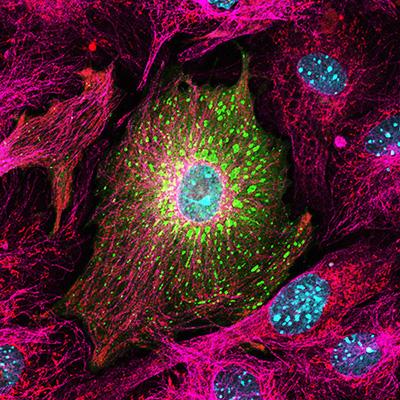 Virus infected heart cell