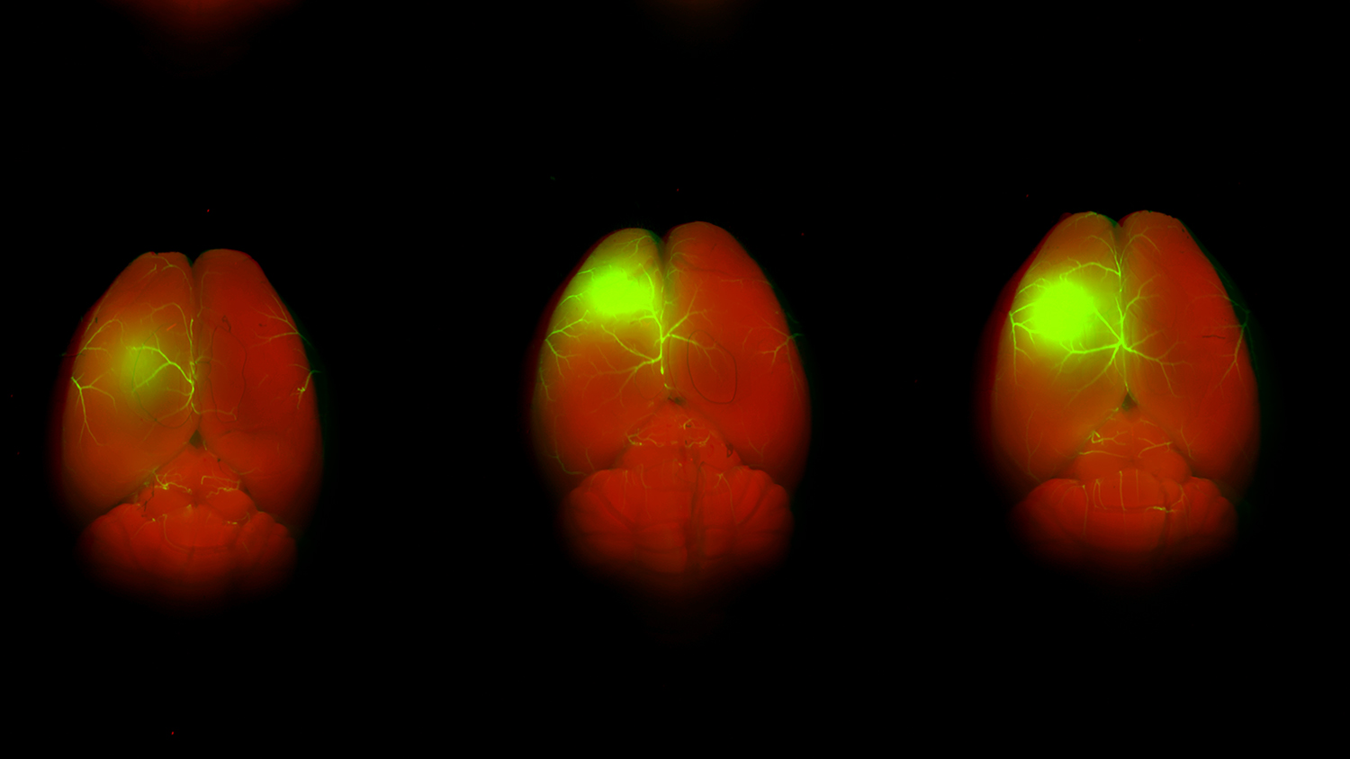 Multiple images of brains, which appear red against a black screen, help researchers study glioblastoma recurrence.