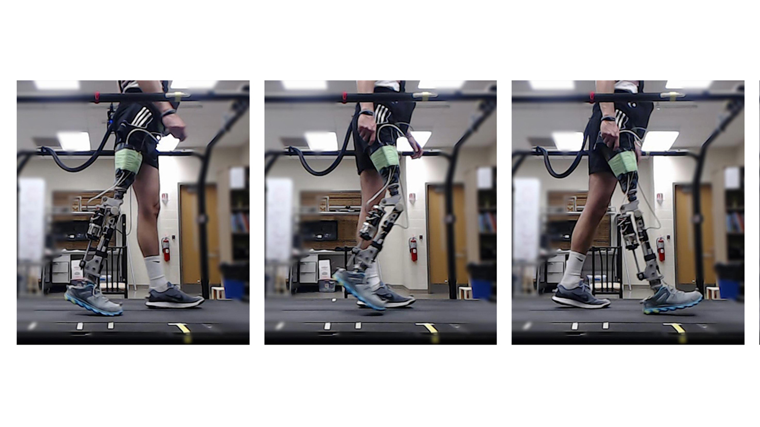 person with prosthetic leg walking on treadmill